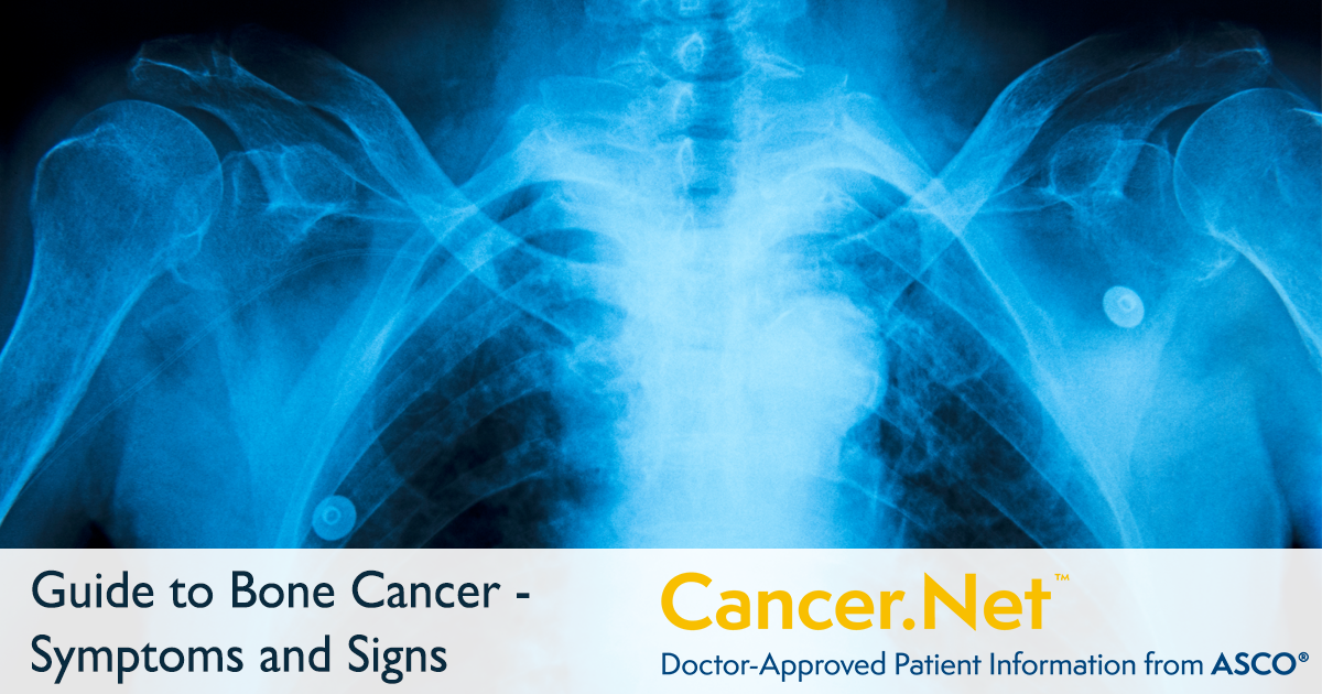 Bone Cancer Sarcoma Of Bone Symptoms And Signs Cancer Net