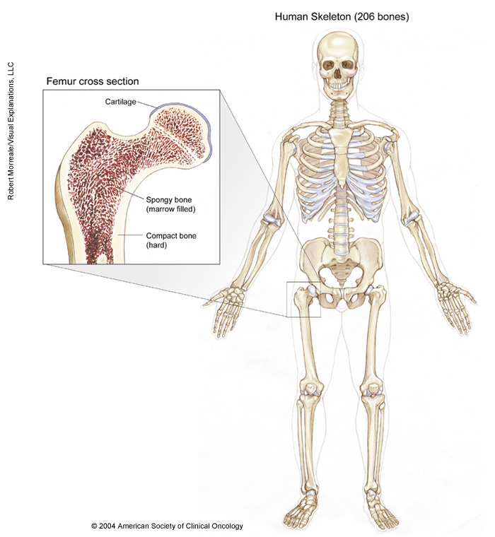 Bone Cancer Medical Illustrations Cancer