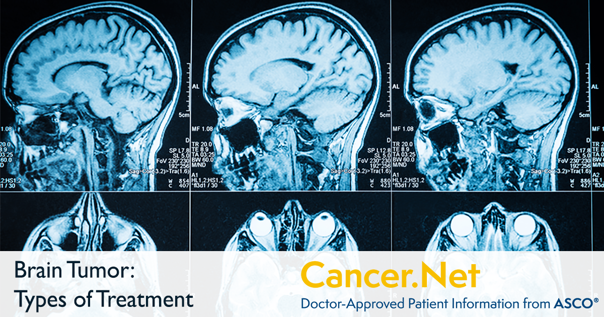Brain Tumor: Types of Treatment | Cancer Net
