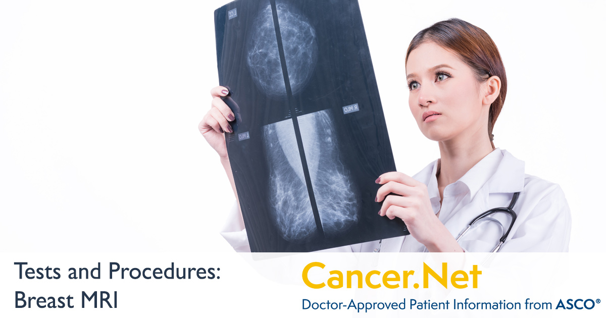 Breast MRI | Cancer Net