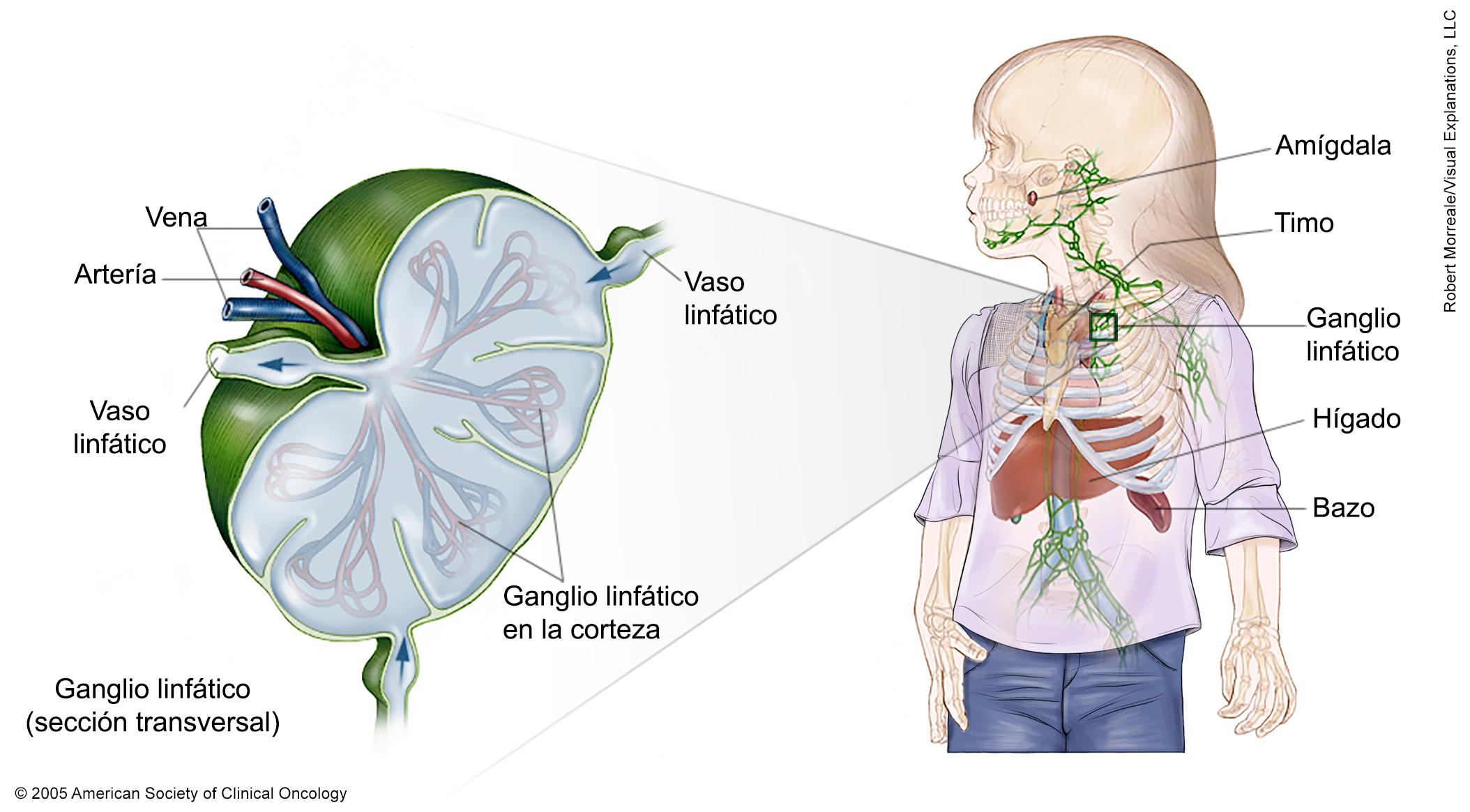 Cancer linfatico hodgkin en ninos, Cancer linfom hodgkin. - Cancer no hodgkin en ninos