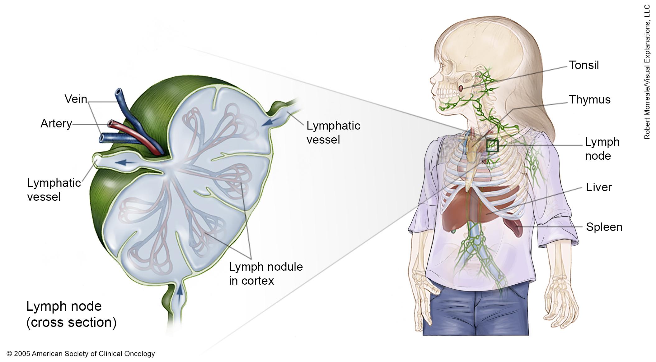 Metastatic cancer non hodgkin s lymphoma - primariacetateni.ro