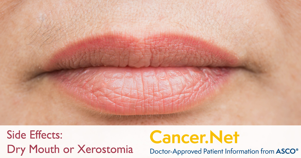 Dry Mouth Or Xerostomia Cancer