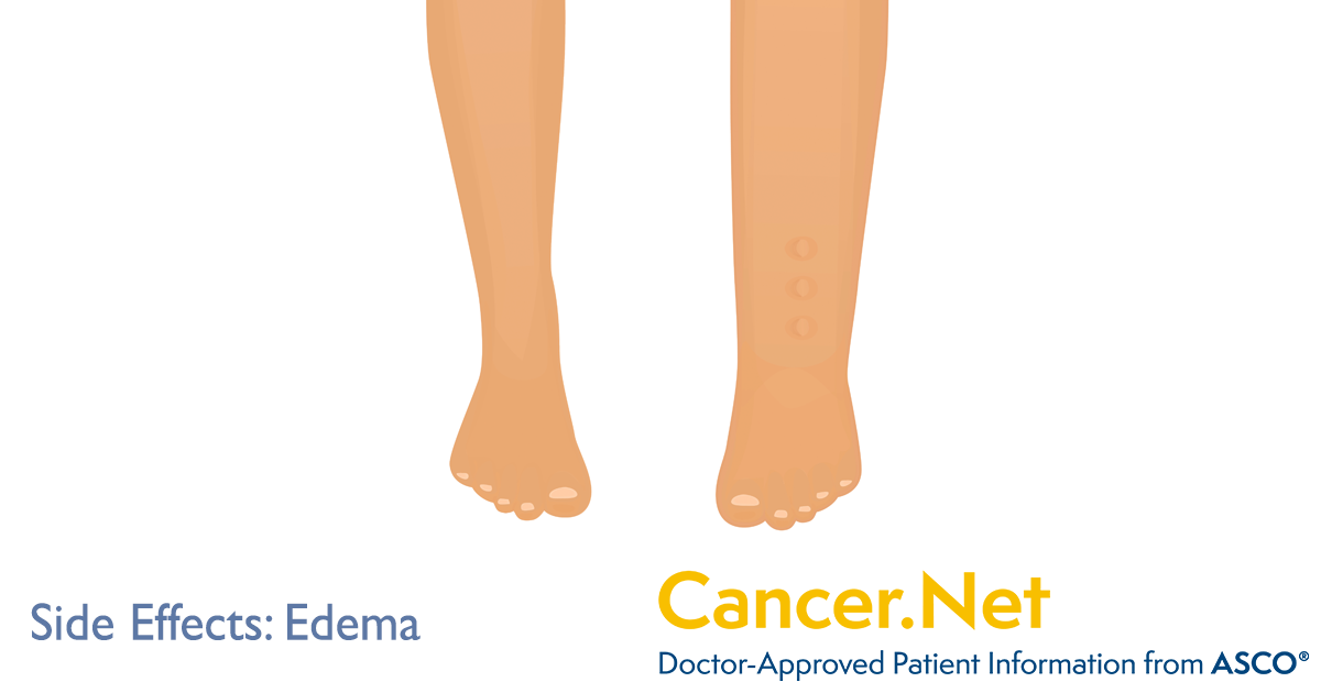 Fluid Retention or Edema | Cancer Net