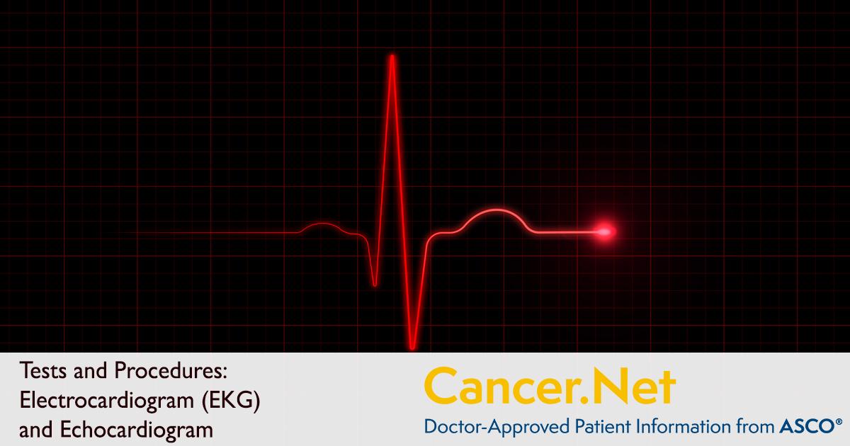 Electrocardiogram (EKG) and Echocardiogram | Cancer.NetCancer.Net