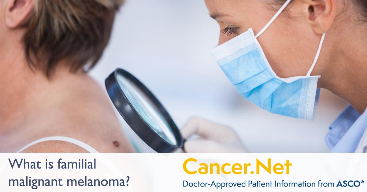 Familial Malignant Melanoma | Cancer Net
