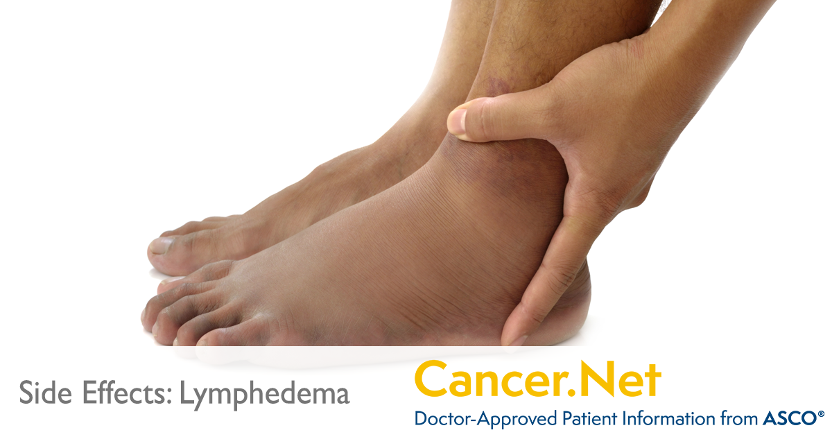 Lymphedema | Cancer Net