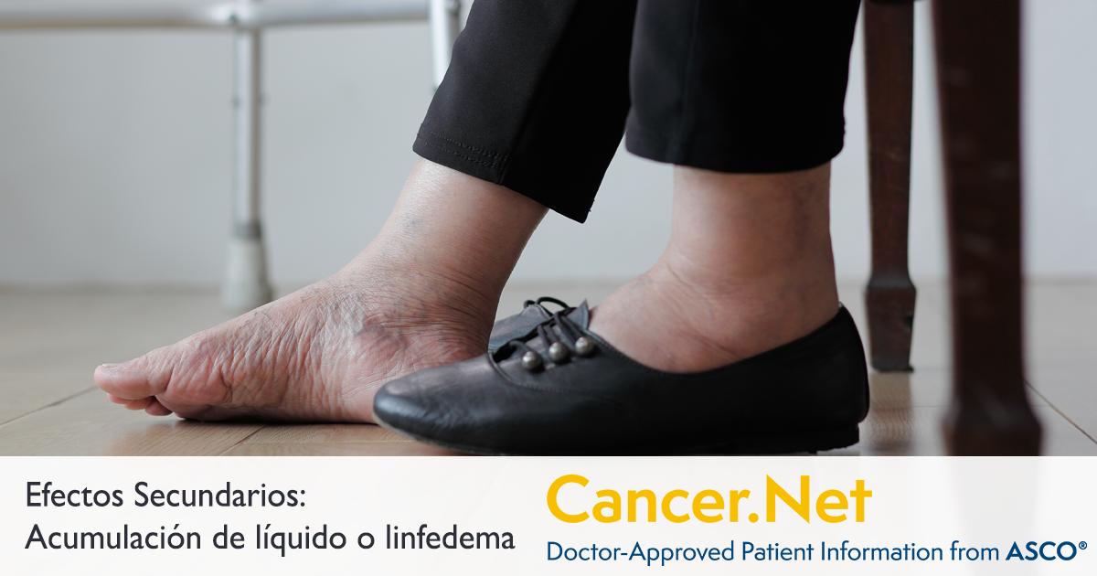 tratamiento de la falla de radiación en el mentón del cáncer de próstata