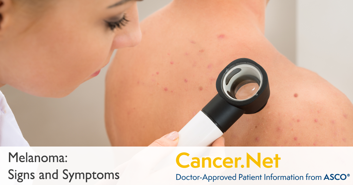 Melanoma: Symptoms and Signs | Cancer Net
