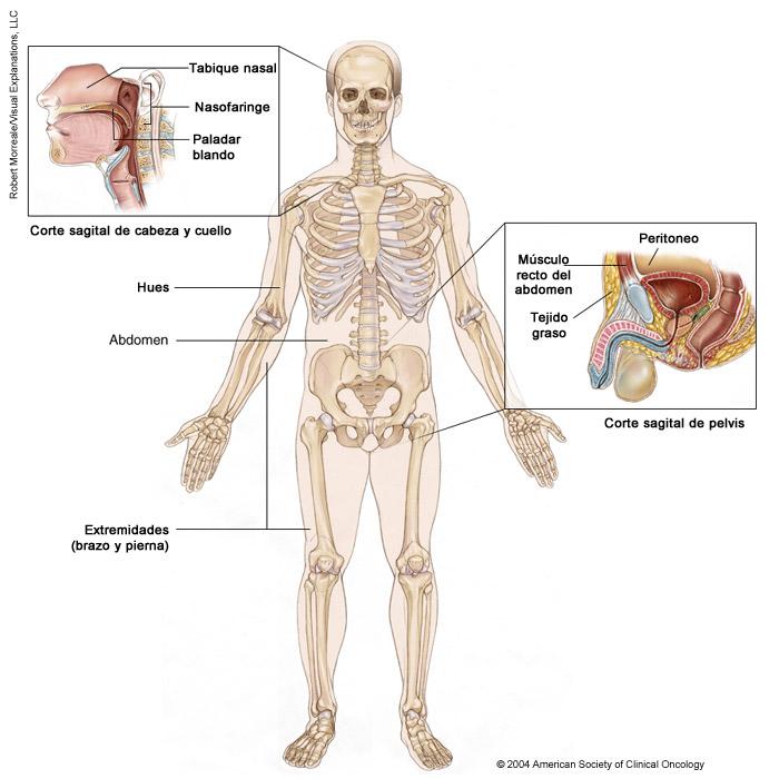 Ilustracion médica de sarcoma de tejido blando
