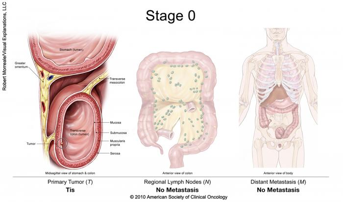 Stage 0 Colorectal Cancer: shows a primary tumor (Tis) located within the colon, no metastasis to regional lymph nodes, no distant metastasis. Copyright 2010 American Society of Clinical Oncology