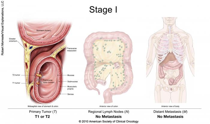 Stage I Colorectal Cancer, showing a primary T1 or T2 tumor, with no metastasis to regional lymph nodes and no distant metastasis. Copyright 2010 American Society of Clinical Oncology.
