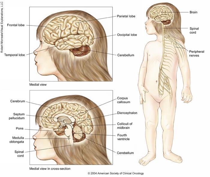 Central Nervous System Tumors Childhood Medical Illustrations