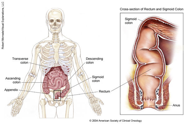 Colorectal Cancer Medical Illustrations Cancer
