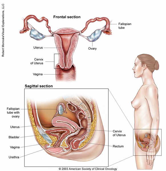 Cervical Cancer Medical Illustrations Cancer