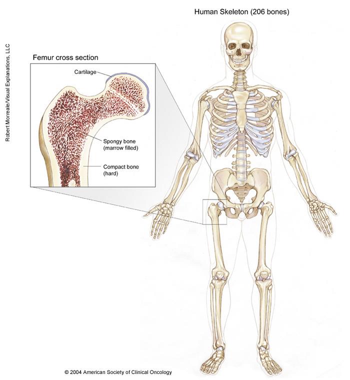 Bone Cancer: Medical Illustrations   Cancer.Net