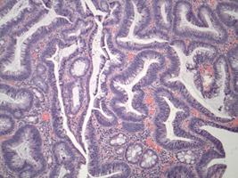 Colon adenoma (polyp)