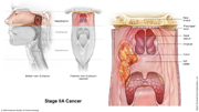 Nasopharyngeal Cancer Stage IIA