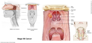Nasopharyngeal Cancer Stage IIB