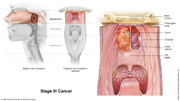 Nasopharyngeal Cancer Stage III
