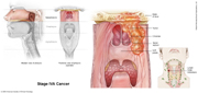 Nasopharyngeal Cancer Stage IVA