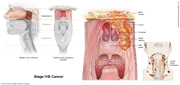 Nasopharyngeal Cancer Stage IVB