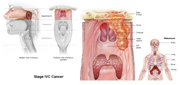 Nasopharyngeal Cancer Stage IVC