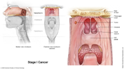Nasopharyngeal Cancer Stage I