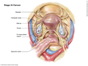 Stage IA Ovarian Cancer