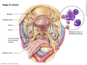 Stage IC Ovarian Cancer