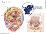 Stage IIIA Ovarian Cancer