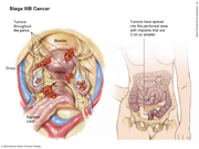Stage IIIB Ovarian Cancer