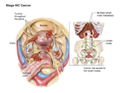 Stage IIIC Ovarian Cancer