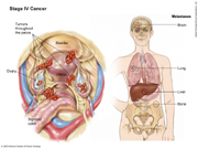 Stage IV Ovarian Cancer