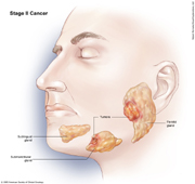 Salivary Gland Cancer Stage II
