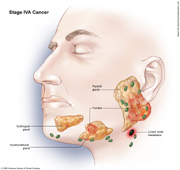 Salivary Gland Cancer Stage IVA