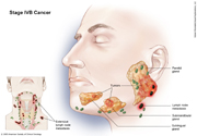Salivary Gland Cancer Stage IVB