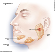 Salivary Gland Cancer Stage I