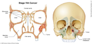 Nasal Cavity and Paranasal Sinus Cancer Stage IVA
