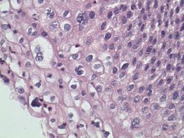Mild Cervical Dysplasia
