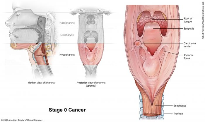 Stage 0 Laryngeal