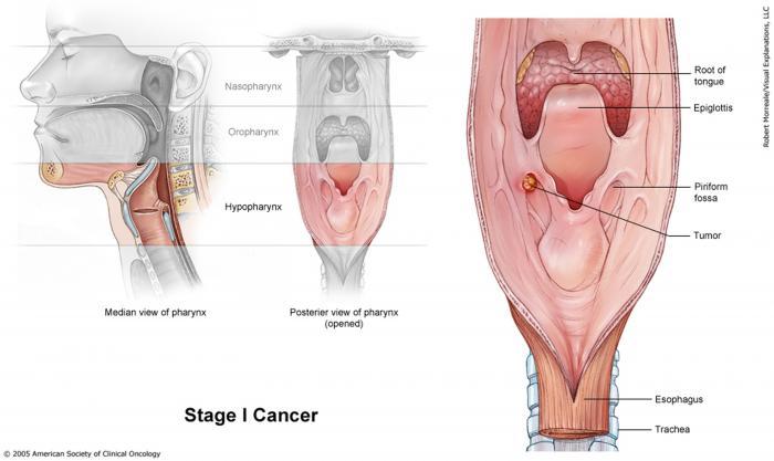 Stage I Laryngeal