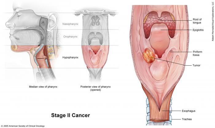 Stage II Laryngeal