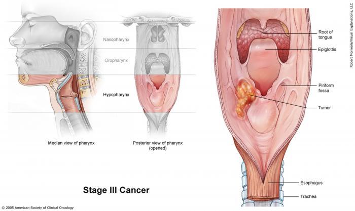 Stage III Laryngeal