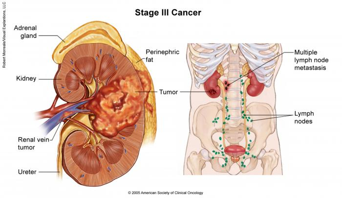 Stage III Kidney Cancer
