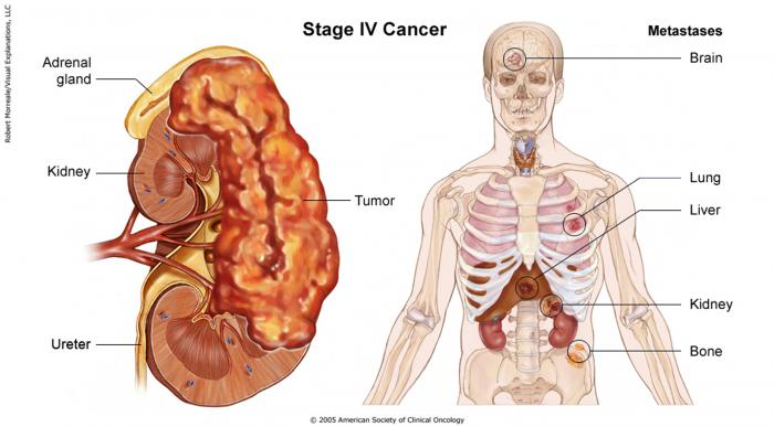 Stage IV Kidney Cancer