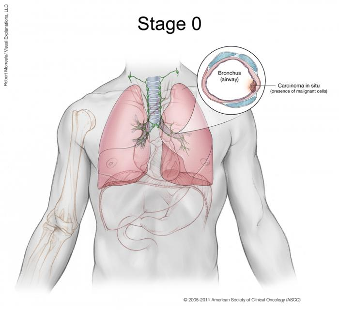 Lung Cancer Stage 0
