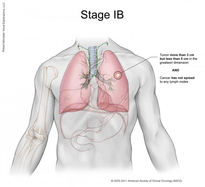 Lung Cancer Stage IB