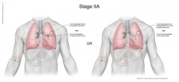 Lung Cancer Stage IIA