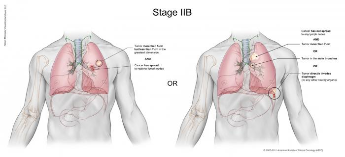 Lung Cancer Stage IIB